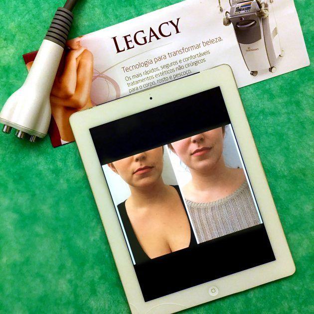Venus Legacy clinica giorelli